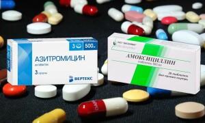 Азитромицин или Амоксициллин – что лучше? Достаточно ли Вы знаете об этих препаратах?