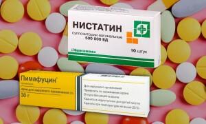 Нистатин или Пимафуцин: что лучше? При кандидозе