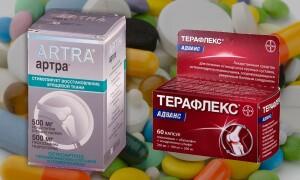 Артра или Терафлекс – что лучше для суставов? Отзывы практикующих врачей
