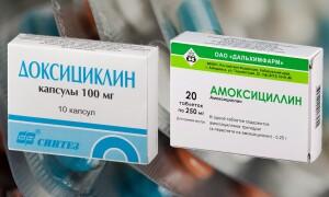 Доксициклин или Амоксициллин – что лучше? Узнай самое важное!